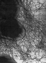 Thumbnail of Transmission electron micrograph of Toronto/Edinburgh epidemic clone of B. cepacia expressing CF mucous-binding Cbi adhesin pili. High resolution was achieved by using a JEOL 100CX electron microscope and negative staining. Reprinted with permission from Richard Goldstein and Journal of Bacteriology (J Bacteriol 1995;177:1039-52).