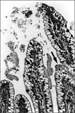Thumbnail of Biofilm (arrow), containing aggregating bacteria and mucus, adhering to the mucosa of a gnotobiotic piglet fed enteroaggregative E. coli strain 042 and sacrificed after 3 days. This piglet did not contract diarrhea. (Reprinted with permission of James Nataro and Clinical Microbiology Reviews. Clin Microbiol Rev 1998;11:142-201.)