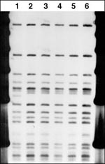 Thumbnail of TBN12 restriction fragment length polymorphism results. Lane 1, elephant isolate (died August 6, 1996); Lane 2, elephant isolate (died 1994); Lane 3, living elephant trunk culture (October 1996); Lane 4, elephant lung tissue isolate (died August 3, 1996); Lane 5, elephant lymph node tissue isolate (died August 3, 1996); Lane 6, human sputum isolate (September 1996). Provided by State of Michigan Community Public Health Agency.
