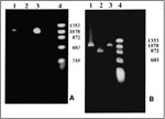 Thumbnail of Polymerase chain reaction (PCR) products. A. With primers for the NadA gene. Lane 1: Patient's sample with an approximately 1.02-kb product; Lane 2: Negative control; Lane 3: Positive control. Ehrlichia chaffeensis (Arkansas strain)–infected DH82 cells; Lane 4: Molecular size markers: fX174 phage DNA cleaved with HaeIII. B. With nested primers for the 120 kDa protein gene. Lane 1: Patient's sample with an approximately 1.1-kb product; Lane 2: Positive control. E. chaffeensis (Sapulp
