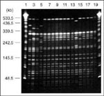 Thumbnail of Pulsed-field gel electrophoresis profiles of Xba I-digested genomic DNA from drug-resistant and drug-sensitive isolates of Salmonella Typhi Vi-phage types E1, M1, and UVS. Tracks 1-20 contained 1 and 20, lambda 48.5-kb ladder (Sigma); 2, M1 type strain (S. Typhi PFP Stp X7); 3, P3044890 (PFP X8a); 4, P3112100 (PFP X8); 5, E1 type strain (PFP X1); 6, P3640980 (PFP X2a); 7, P3639160 (PFP X2a); 8, P2967750 (PFP X2a); 9, P4405140 (PFP X2a); 10, P4405200 (PFP X2a); 11, P4632360 (PFP X2a)