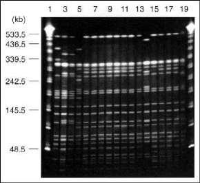 Pulsed-field gel electrophoresis profiles of Xba I-digested genomic DNA from drug-resistant and drug-sensitive isolates of Salmonella Typhi Vi-phage types E1, M1, and UVS. Tracks 1-20 contained 1 and 20, lambda 48.5-kb ladder (Sigma); 2, M1 type strain (S. Typhi PFP Stp X7); 3, P3044890 (PFP X8a); 4, P3112100 (PFP X8); 5, E1 type strain (PFP X1); 6, P3640980 (PFP X2a); 7, P3639160 (PFP X2a); 8, P2967750 (PFP X2a); 9, P4405140 (PFP X2a); 10, P4405200 (PFP X2a); 11, P4632360 (PFP X2a); 12, P466397