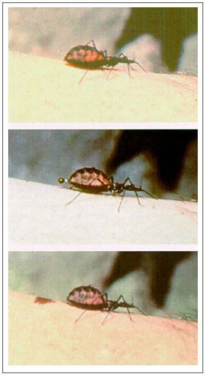 A triatomine bug vector of Chagas disease in the process of feeding. The fecal droplet contains infective trypanosomes and bacterial symbionts. (Photographs courtesy of Robert B. Tesh).