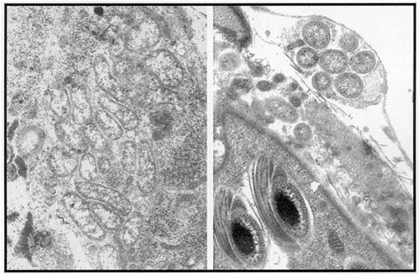 Wolbachia-like organisms in insect reproductive tissues.