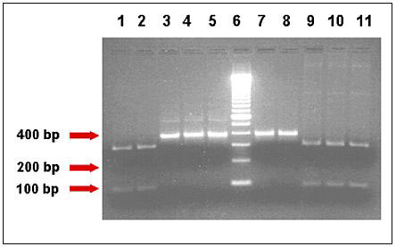 Human- and bovine-specific restriction enzymes showed distinct banding pattern for genotypes of Cryptosporidium parvum isolates. The different lanes represent the TRAP-C2 PCR-amplified products belonging to AGA43, AMD36, AOH6, HM3, and HM5 isolates of C. parvum, respectively, after digestion with HaeIII (Lanes 1-5, human-specific marker) and BstE II (Lanes 7-11, bovine-specific marker) restriction enzymes and agarose gel electrophoresis. Lane 6 is the 100 bp marker. Samples AGA43, AMD36 and AOH6