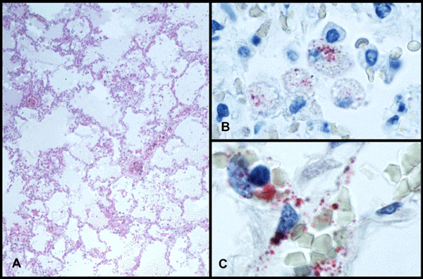 A) Low-power photomicrograph of lung showing interstitial pneumonitis and intraalveolar edema. B) Andes virus antigen–positive intraalveolar macrophages. C) Fine granular immunostaining of hantaviral antigens in endothelial cells of pulmonary microvasculature. (A, Hematoxylin and eosin; B,C, napthol-fast red with hematoxylin counterstain; original magnifications A x 50, B and C x 250.)