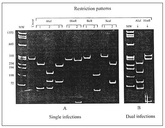 Differentiation between single (A) and dual (B) HIV-1 infections by the restriction fragment length polymorphism analysis of the polymerase chain reaction—amplified prt. A: Three AluI digestion patterns represent subtypes A, C, and F (pattern 1) and subtypes B and D (patterns 2 and 3); two HinfI patterns represent subtypes D (pattern 1) and B (pattern 2); two BclI patterns represent subtypes F (patterns 1) and A and C (pattern 2); two ScaI patterns represent subtypes A (pattern 1) and C (pattern