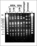 Thumbnail of Pulsed-field gel electrophoresis (PFGE) profiles of SmaI digested DNA. Case patient MRSA isolates from December 1997 and January 1998, GISA isolate from March 1998. Nephrologist MRSA isolate from March 1998 and unrelated MRSA isolates.