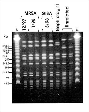 Pulsed-field gel electrophoresis (PFGE) profiles of SmaI digested DNA. Case patient MRSA isolates from December 1997 and January 1998, GISA isolate from March 1998. Nephrologist MRSA isolate from March 1998 and unrelated MRSA isolates.