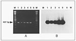Thumbnail of Polymerase chain reaction (PCR) detection of Mycoplasma penetrans in clinical samples. A. M. penetrans PCR genomic amplification with the primers MYCPENET-P and MYCPENET-N (7) and analyzed by electrophoresis in 2% agarose gel. Lysates from the following original samples: throat swab (lane 1); tracheal aspirate (lane 2); blood (lane 3); first blood subculture (HF-1 isolate) (lane 4); M. penetrans GTU-54-6A1 (lane 5), showing the amplification product of 407-bp; and negative control (