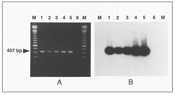 Polymerase chain reaction (PCR) detection of Mycoplasma penetrans in clinical samples. A. M. penetrans PCR genomic amplification with the primers MYCPENET-P and MYCPENET-N (7) and analyzed by electrophoresis in 2% agarose gel. Lysates from the following original samples: throat swab (lane 1); tracheal aspirate (lane 2); blood (lane 3); first blood subculture (HF-1 isolate) (lane 4); M. penetrans GTU-54-6A1 (lane 5), showing the amplification product of 407-bp; and negative control (lane 6). B. S