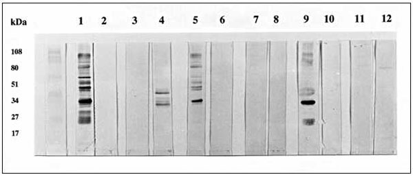 Western blot of Toxoplasma gondii or Neospora caninum antigen. Analysis was performed essentially as described by Sharma et al. (12) by using tachyzoites from in vitro culture of the N. caninum NC-1 isolate (13) and the T. gondii RH strain (10). Lanes 1-4 were probed with control sera and lanes 5-12 with human sera with high absorbencies in the N. caninum enzyme-linked immunosorbent assay. 