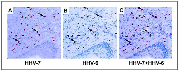 Expression of human herpesvirus 6B (HHV-6B) and HHV-7 antigens in serial sections of Kaposi sarcoma specimens. Panels A-C: In Kaposi sarcoma environment, cells can be doubly infected by HHV-6B and HHV-7: (A) Staining with monoclonal antibody 5E1 to HHV-7-specific antigen pp85; (B) Staining with monoclonal antibody to HHV-6B-specific antigen p101; (C) Overlaid serial sections show colocalization of HHV-6B and HHV-7 (71).