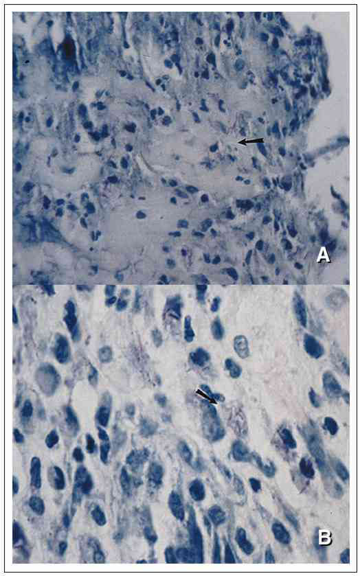 Active disease histopathologic sections of soft tissue stained for acid-fast bacilli from a patient with a Mycobacterium marinum infection. In A, the arrow indicates localized necrosis, and in B, the arrow indicates predominance of intracellular bacilli. 