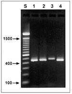 Thumbnail of Agarose gel (2%) visualization of diagnostic polymerase chain reaction products of four Cryptosporidium genotypes. Lane S, standard 100-bp ladder; lane 1, patient 53, zoonotic genotype 2; lane 2, patient 119, Cryptosporidium sp. (zoonotic, canine genotype); lane 3, patient 84, C. felis (zoonotic, feline genotype); lane 4, patient 75, anthroponotic genotype 1.