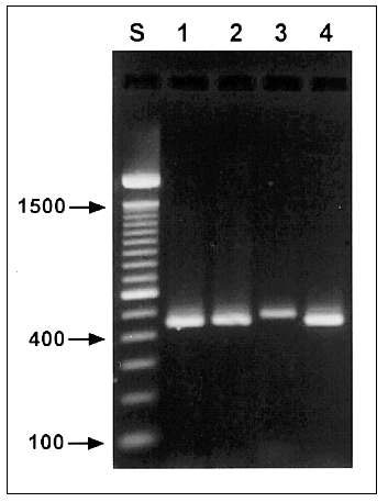 Agarose gel (2%) visualization of diagnostic polymerase chain reaction products of four Cryptosporidium genotypes. Lane S, standard 100-bp ladder; lane 1, patient 53, zoonotic genotype 2; lane 2, patient 119, Cryptosporidium sp. (zoonotic, canine genotype); lane 3, patient 84, C. felis (zoonotic, feline genotype); lane 4, patient 75, anthroponotic genotype 1.