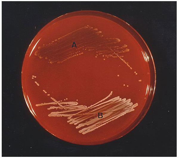Staphylococcus aureus small colony variants (A) and S. aureus with a normal phenotype (B) cultured on sheep blood agar after 24 hours of incubation at 35°C. Staphylococci were identified by conventional methods (6) and with the ID 32 Staph system (bioMérieux, Marcy-L'Etoile, France) following the instructions of the manufacturer. The tube-coagulase test was read after 24 hours. S. aureus isolates were characterized as small colony variants as described before (7-8). Auxotrophic requirements were