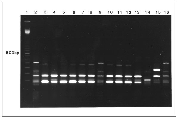 Fingerprint patterns obtained for Staphylococcus aureus small colony variants (lanes 3-5, bloodculture isolates; lanes 6 and 7, isolates from hip abscess; lane 8, postmortem specimen) and S. aureus isolates with a normal phenotype (lanes 10 and 11, isolates from nose and throat; lanes 12 and 13, isolates from hip abscess and postmortem specimen) after polymerase chain reaction (PCR) analysis of inter-IS256 spacer length showing identical strains. Lane 1, 100-bp ladder; lanes 2, 9, and 16, methic