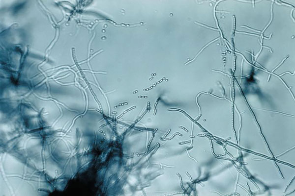 Slide culture of a Streptomyces sp. bacteria, which produces the antibiotic streptomycin. Note the branching filamentous hyphae, abundant aerial mycelia, and long chains of small spores. Image: CDC/Dr. David Berd