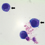 Thumbnail of Anaplasma phagocytophilum cultured in human promyelocytic cells, showing morulae as basophilic and intracytoplasmic inclusions (arrows). Wright-Giemsa stain. Original magnification x1,000. Image: Emerg Infect Dis. 2014;20:1708–11.