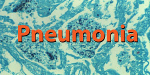 Pneumonia Spotlight