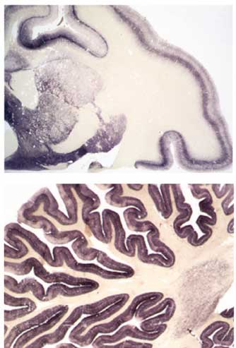 BSE-associated Prion-Amyloid Cardiomyopathy in Primates